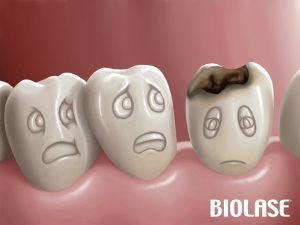 cavity_tooth_decay_ancient_dentistry