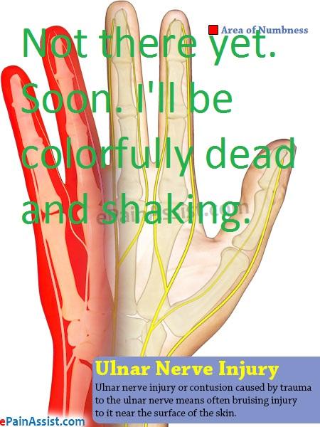 ulnar-nerve-injury